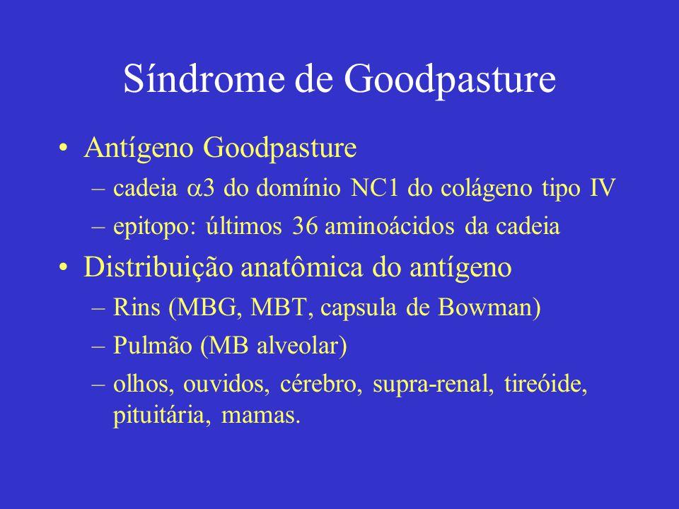 Síndrome de Goodpasture Antígeno Goodpasture –cadeia  3 do domínio NC1 do colágeno tipo IV –epitopo: últimos 36 aminoácidos da cadeia Distribuição anatômica do antígeno –Rins (MBG, MBT, capsula de Bowman) –Pulmão (MB alveolar) –olhos, ouvidos, cérebro, supra-renal, tireóide, pituitária, mamas.