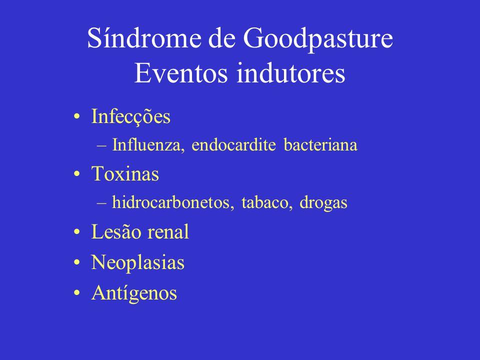 Síndrome de Goodpasture Manifestações clínicas Renais –proteinúria não nefrótica –hematúria e outras alterações do sedimento urinário –insuficiência renal Pulmonares –hemorragia pulmonar –insuficiência respiratória