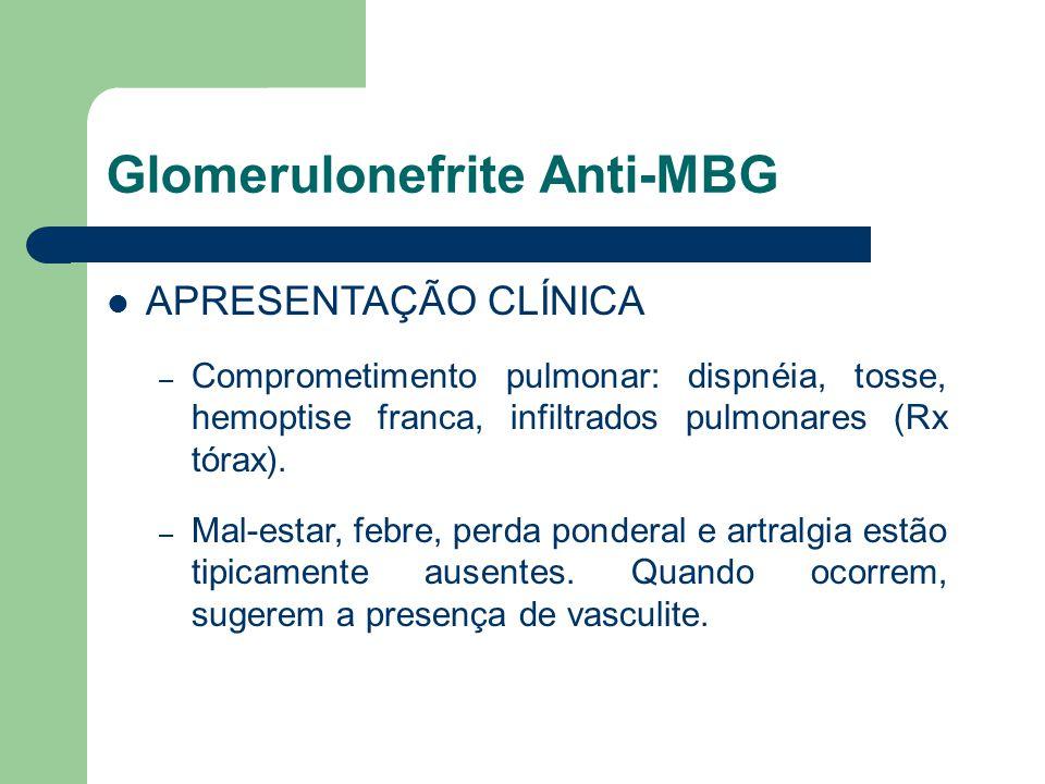 Glomerulonefrite Anti-MBG APRESENTAÇÃO CLÍNICA – Comprometimento pulmonar: dispnéia, tosse, hemoptise franca, infiltrados pulmonares (Rx tórax). – Mal