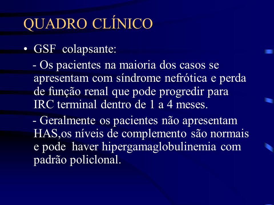 QUADRO CLÍNICO GSF colapsante: - Os pacientes na maioria dos casos se apresentam com síndrome nefrótica e perda de função renal que pode progredir par