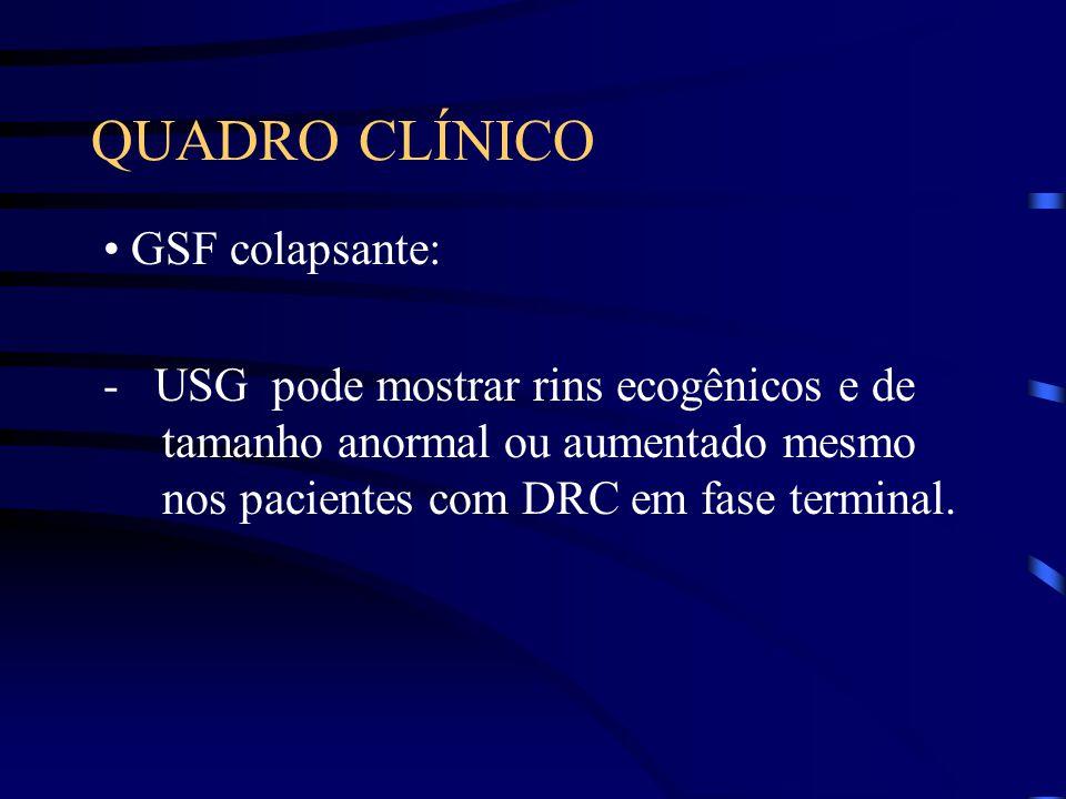 QUADRO CLÍNICO GSF colapsante: - USG pode mostrar rins ecogênicos e de tamanho anormal ou aumentado mesmo nos pacientes com DRC em fase terminal.