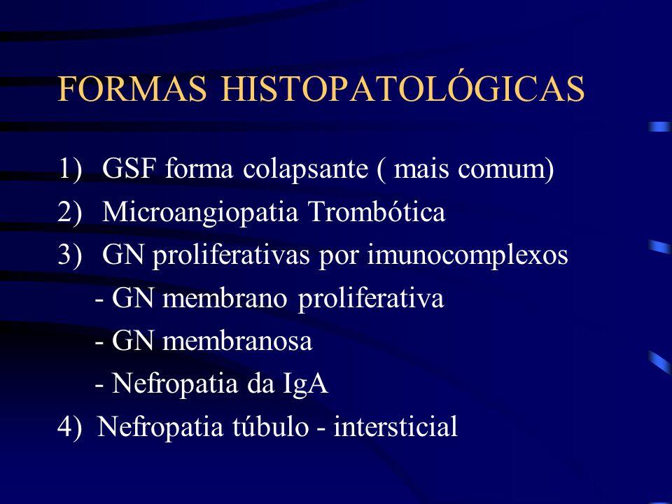 FORMAS HISTOPATOLÓGICAS 1)GSF forma colapsante ( mais comum) 2)Microangiopatia Trombótica 3)GN proliferativas por imunocomplexos - GN membrano prolife