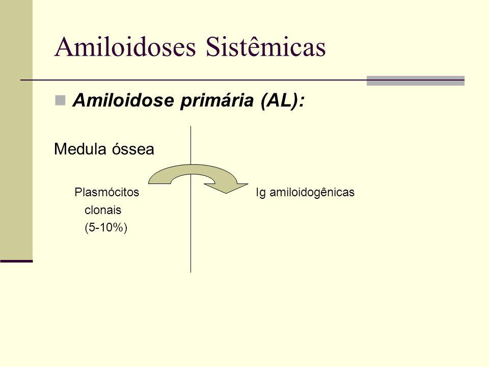 Amiloidoses Sistêmicas Amiloidose primária (AL): Medula óssea Plasmócitos Ig amiloidogênicas clonais (5-10%)