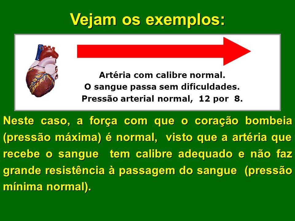 A pressão arterial depende da largura (diâmetro) da artéria.