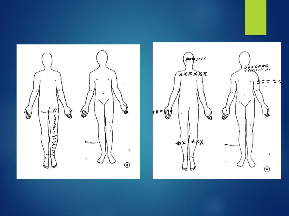 Objetivo:  Fazer uma revisão sistemática sobre a correlação entre ansiedade, depressão, cinesiofobia e transtornos somatoformes com o resultado da cirurgia para pacientes com prolapso do disco intervertebral lombar.