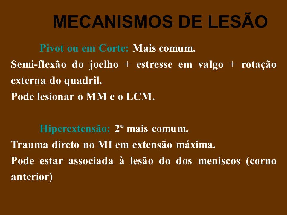 MECANISMOS DE LESÃO Pivot ou em Corte: Mais comum. Semi-flexão do joelho + estresse em valgo + rotação externa do quadril. Pode lesionar o MM e o LCM.