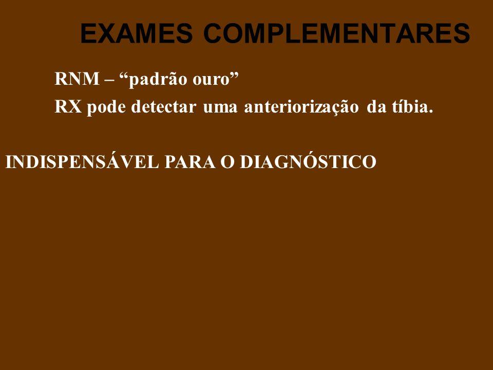 """EXAMES COMPLEMENTARES RNM – """"padrão ouro"""" RX pode detectar uma anteriorização da tíbia. INDISPENSÁVEL PARA O DIAGNÓSTICO"""