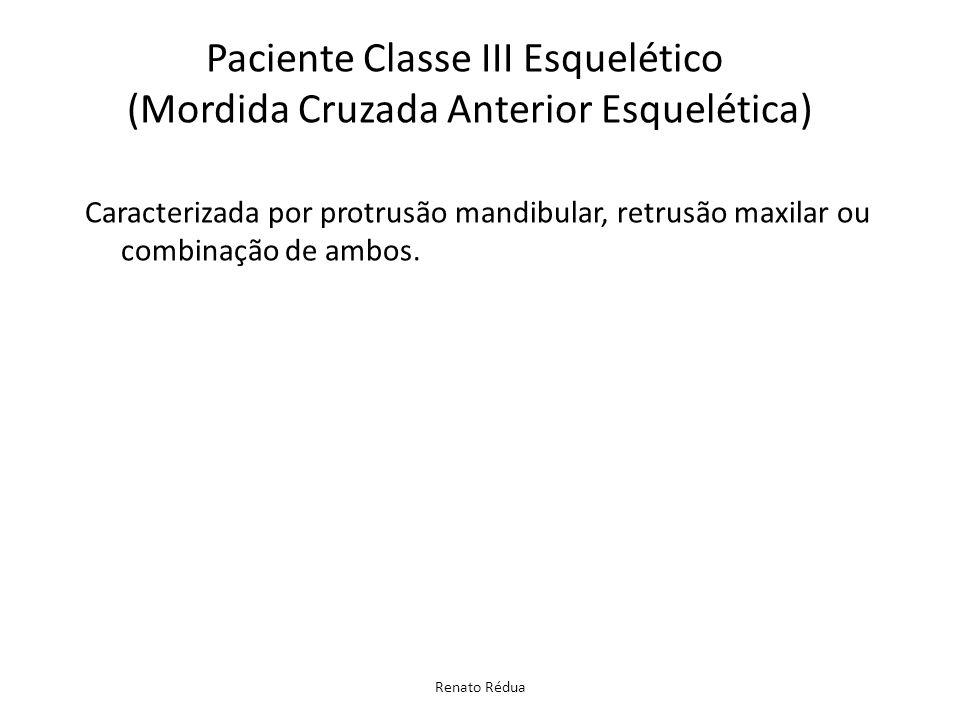 Renato Rédua Caracterizada por protrusão mandibular, retrusão maxilar ou combinação de ambos. Paciente Classe III Esquelético (Mordida Cruzada Anterio