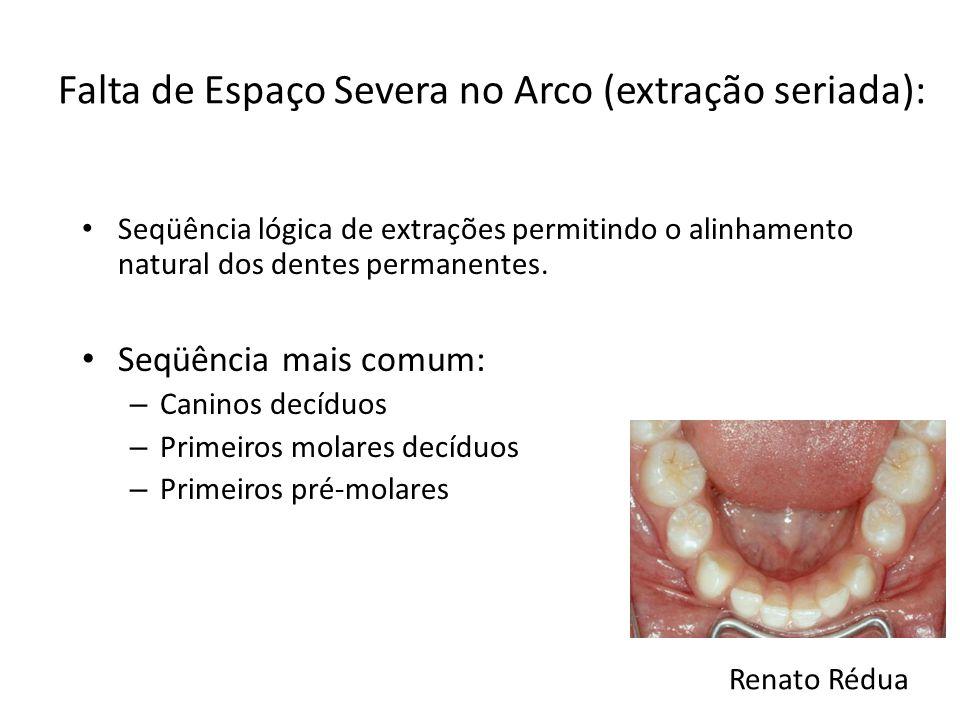 Falta de Espaço Severa no Arco (extração seriada): Seqüência lógica de extrações permitindo o alinhamento natural dos dentes permanentes. Seqüência ma