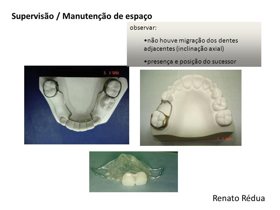 Supervisão / Manutenção de espaço observar: não houve migração dos dentes adjacentes (inclinação axial) presença e posição do sucessor Renato Rédua