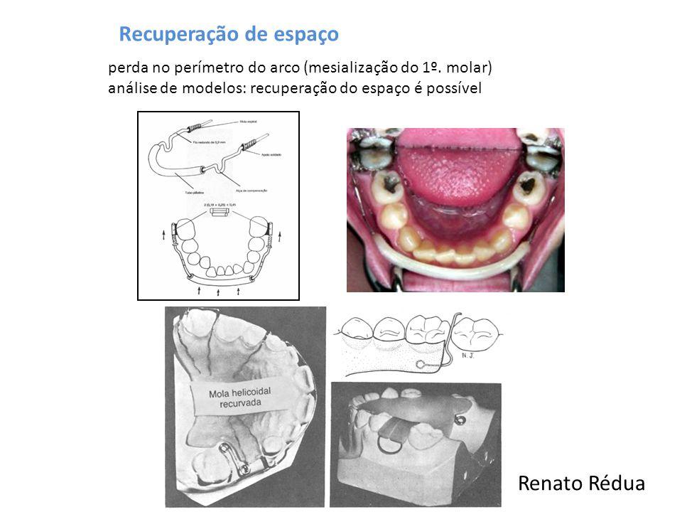 Recuperação de espaço perda no perímetro do arco (mesialização do 1º. molar) análise de modelos: recuperação do espaço é possível Renato Rédua