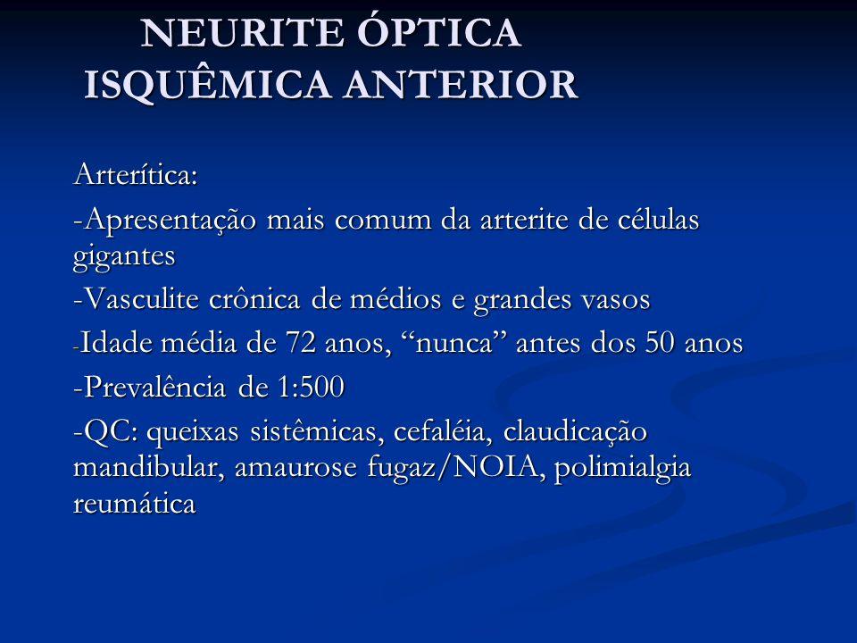 NEURITE ÓPTICA ISQUÊMICA ANTERIOR Arterítica: -Apresentação mais comum da arterite de células gigantes -Vasculite crônica de médios e grandes vasos - Idade média de 72 anos, nunca antes dos 50 anos -Prevalência de 1:500 -QC: queixas sistêmicas, cefaléia, claudicação mandibular, amaurose fugaz/NOIA, polimialgia reumática