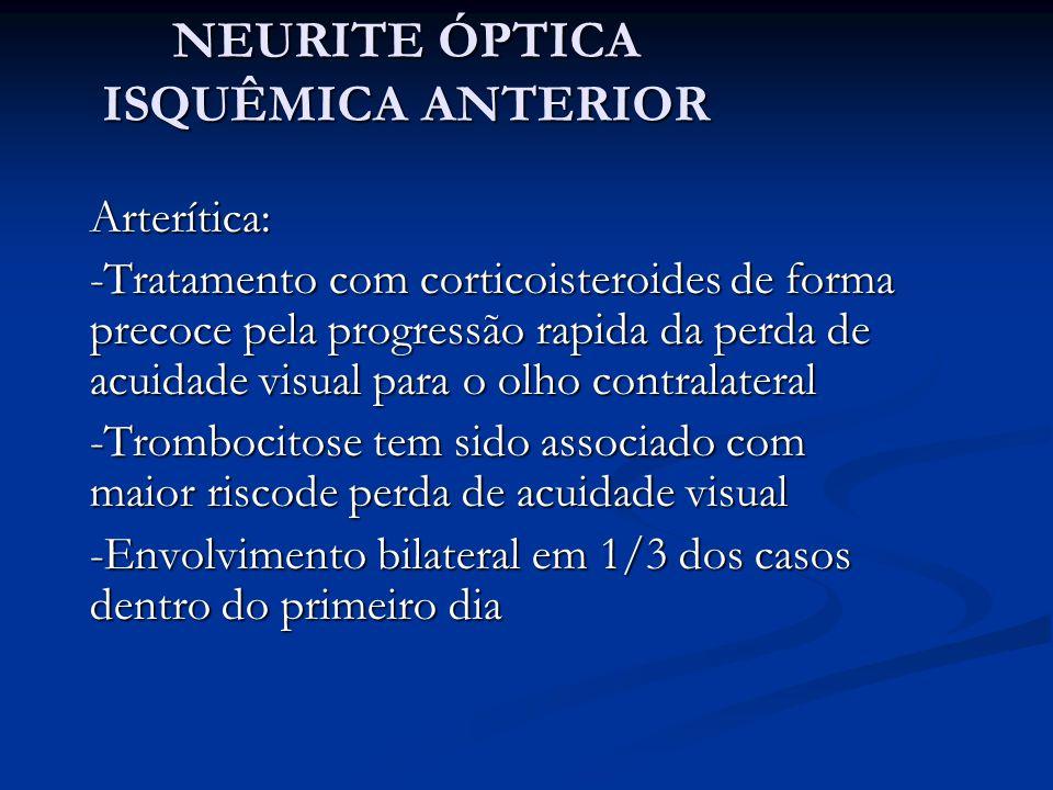 NEURITE ÓPTICA ISQUÊMICA ANTERIOR Arterítica: -Tratamento com corticoisteroides de forma precoce pela progressão rapida da perda de acuidade visual para o olho contralateral -Trombocitose tem sido associado com maior riscode perda de acuidade visual -Envolvimento bilateral em 1/3 dos casos dentro do primeiro dia