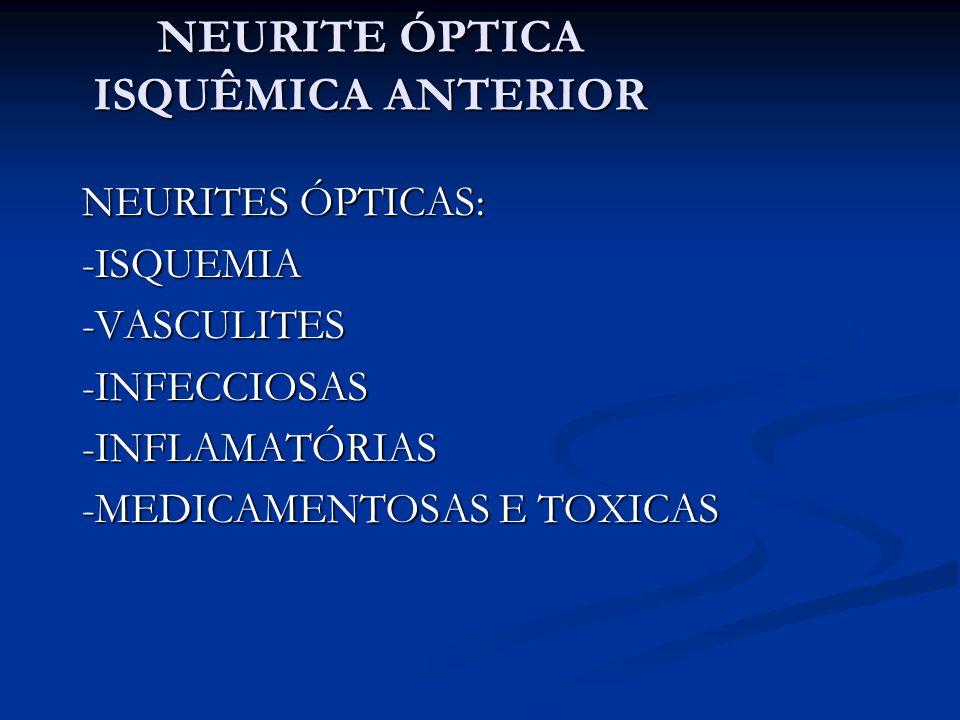 NEURITE ÓPTICA ISQUÊMICA ANTERIOR NEURITES ÓPTICAS ISQUÊMICAS: - Anterior (afetando o disco optico) - Posterior (retrobulbar) - Arterítica - Não arterítica Obs: posterior ainda pode decorrer de hipovolemia aguda, hipotensão, pericirurgico