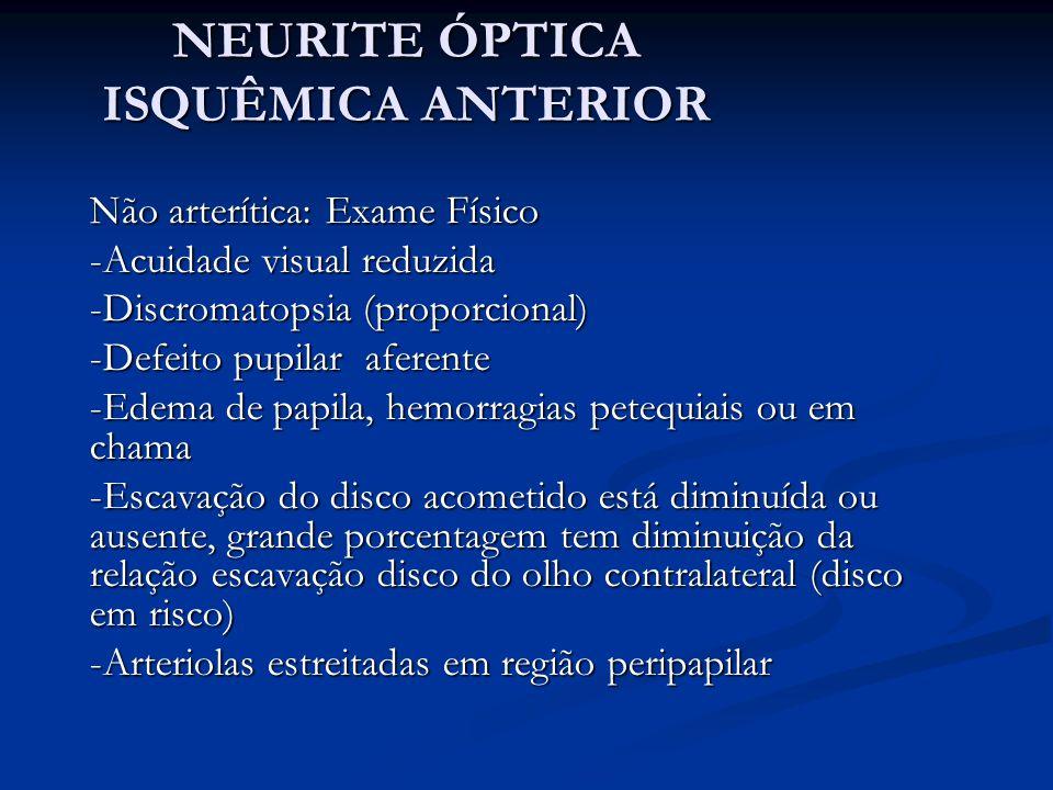 NEURITE ÓPTICA ISQUÊMICA ANTERIOR Não arterítica: Exame Físico -Acuidade visual reduzida -Discromatopsia (proporcional) -Defeito pupilar aferente -Edema de papila, hemorragias petequiais ou em chama -Escavação do disco acometido está diminuída ou ausente, grande porcentagem tem diminuição da relação escavação disco do olho contralateral (disco em risco) -Arteriolas estreitadas em região peripapilar