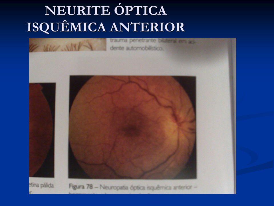 Critérios para investigação pormenorizada: -Idade menor que 50 anos -Ausencia de fatores de risco cardiovasculres -Grande relação ecavação disco no olho não afetado -Heminaopsia -NOIA bilateral simultânea ou sequencialmente rapida -Amaurose fugaz previa -Sem edema de papilana fase aguda -Progressão após 2 a 4 semanas -Recorrencia no mesmo olho -Inflamação no segmento anterior ou posterior -Atrofia óptica na apresentação