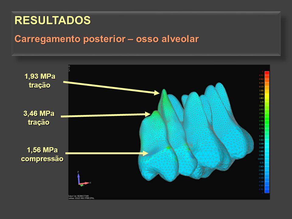 3,46 MPa tração 1,56 MPa compressão 1,93 MPa tração RESULTADOS Carregamento posterior – osso alveolar RESULTADOS