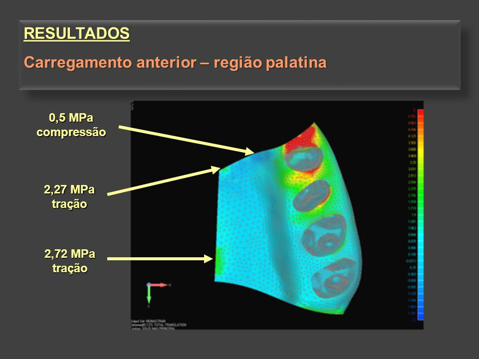 2,27 MPa tração 2,72 MPa tração 0,5 MPa compressão RESULTADOS Carregamento anterior – região palatina RESULTADOS