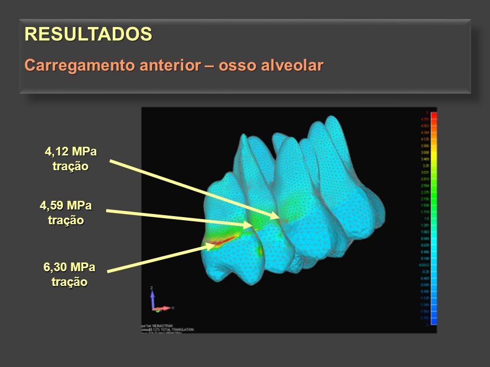 6,30 MPa tração 4,59 MPa tração 4,12 MPa tração RESULTADOS Carregamento anterior – osso alveolar RESULTADOS