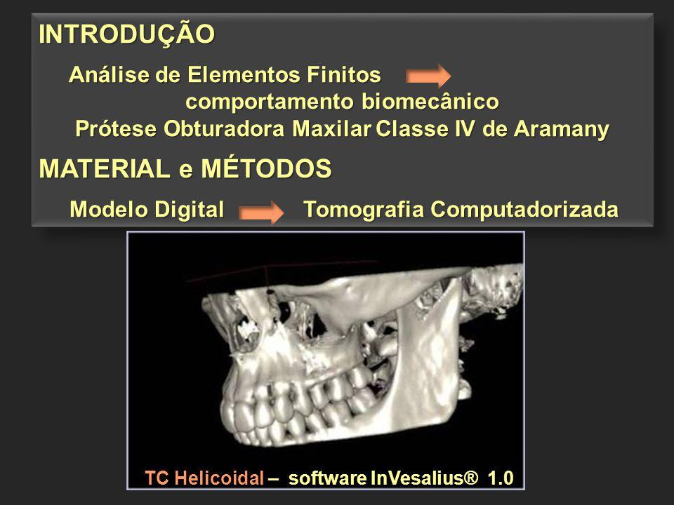 INTRODUÇÃO Análise de Elementos Finitos Análise de Elementos Finitos comportamento biomecânico Prótese Obturadora Maxilar Classe IV de Aramany MATERIA