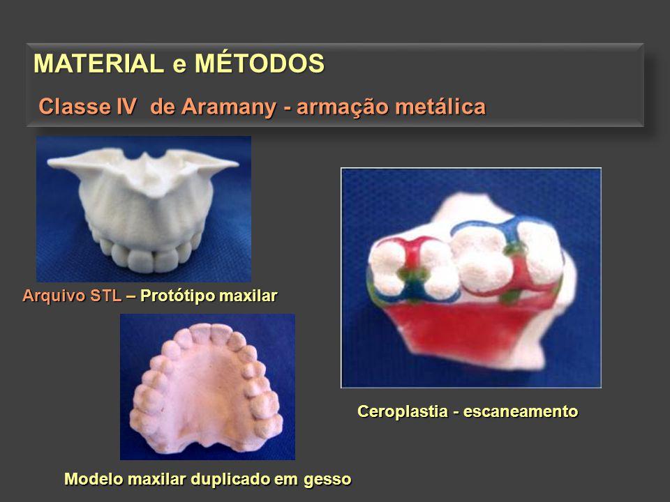 MATERIAL e MÉTODOS Arquivo STL – Protótipo maxilar Modelo maxilar duplicado em gesso Ceroplastia - escaneamento Classe IV de Aramany - armação metálic