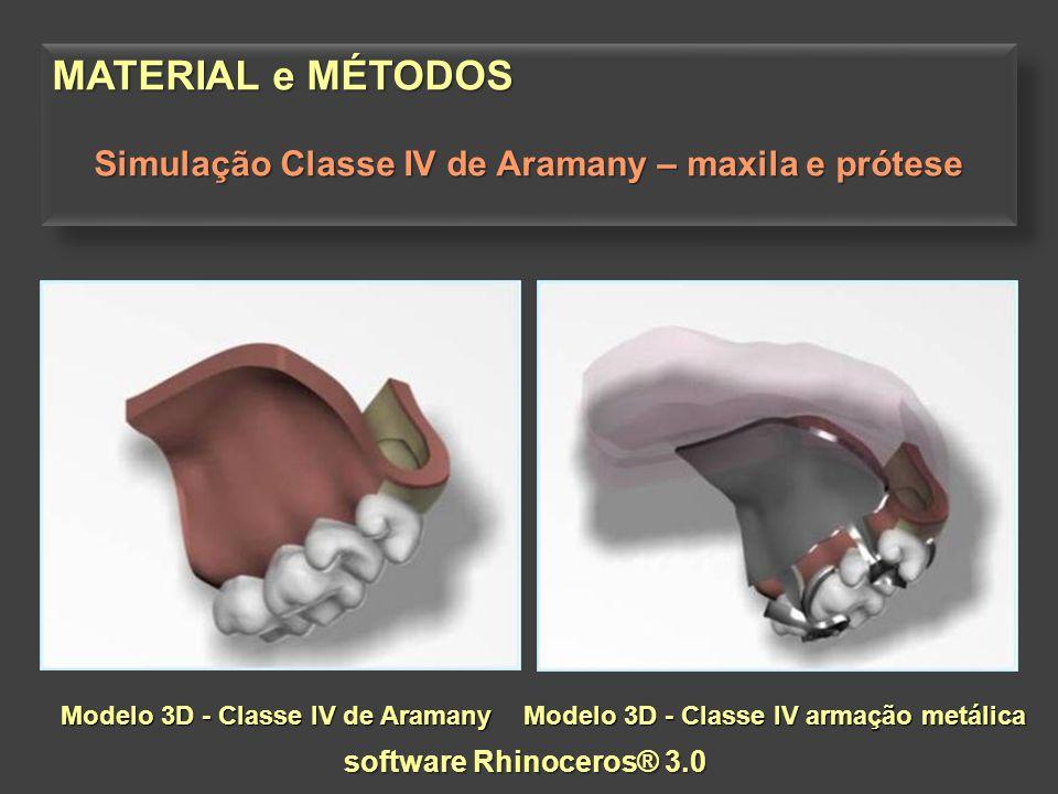 MATERIAL e MÉTODOS Simulação Classe IV de Aramany – maxila + prótese MATERIAL e MÉTODOS Simulação Classe IV de Aramany – maxila + prótese Modelo 3D – elementos finitos software FEMAP/NEiNASTRAN® CAD - software Rhinoceros® 3.0
