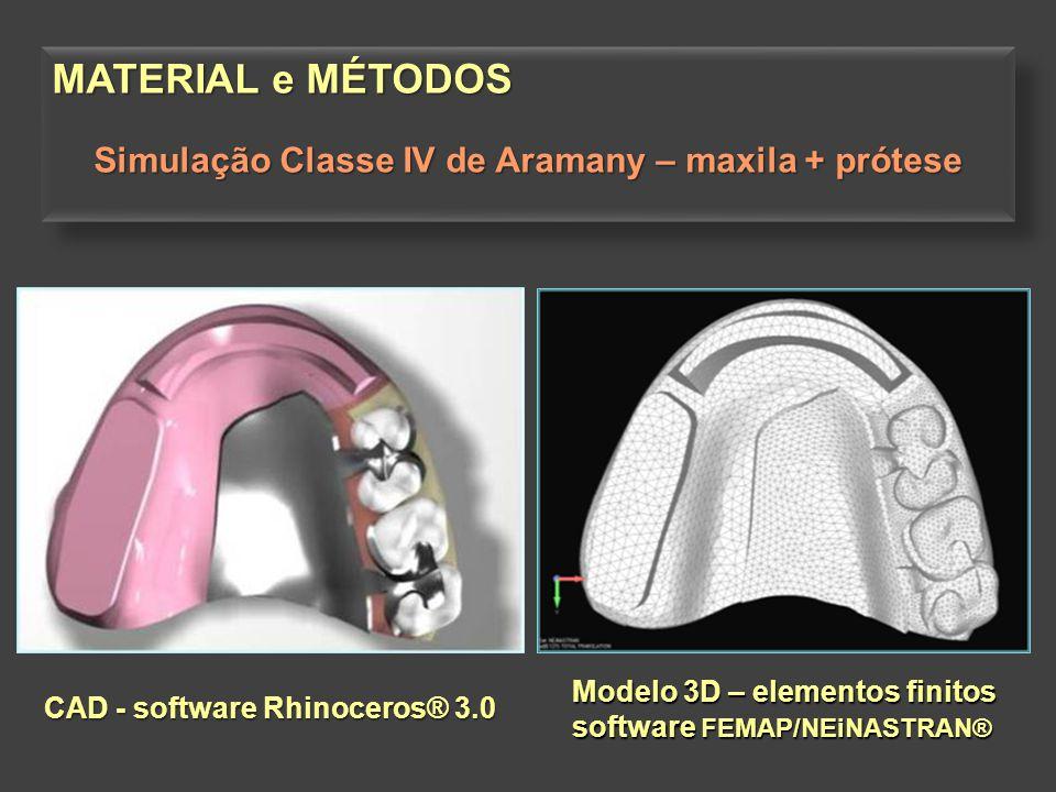MATERIAL e MÉTODOS Simulação Classe IV de Aramany – maxila + prótese MATERIAL e MÉTODOS Simulação Classe IV de Aramany – maxila + prótese Modelo 3D –