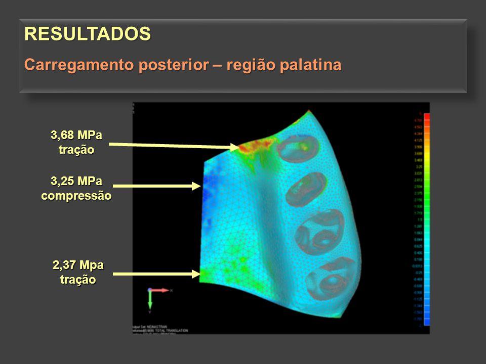 3,62 MPa compressão 3,68 MPa tração RESULTADOS Carregamento posterior – limite anterior da ressecção do osso alveolar do osso alveolarRESULTADOS Carregamento posterior – limite anterior da ressecção do osso alveolar do osso alveolar