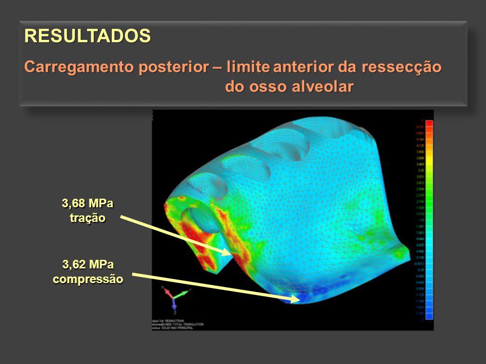 3,62 MPa compressão 3,68 MPa tração RESULTADOS Carregamento posterior – limite anterior da ressecção do osso alveolar do osso alveolarRESULTADOS Carre