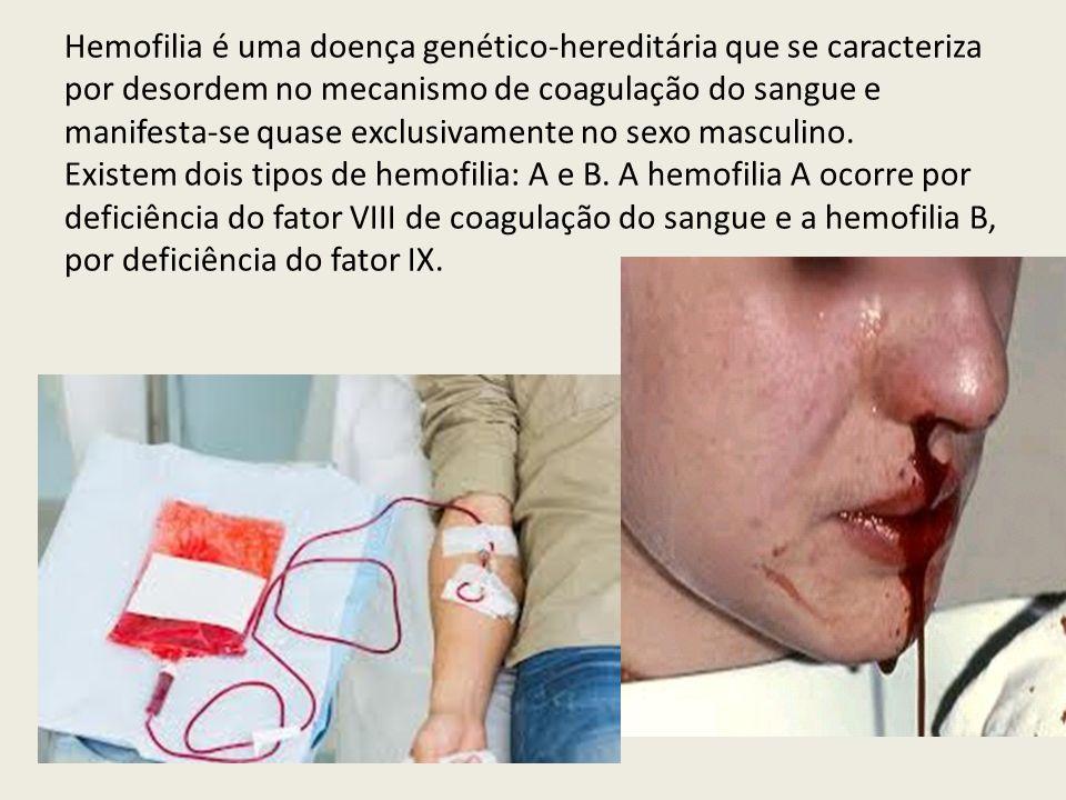Hemofilia é uma doença genético-hereditária que se caracteriza por desordem no mecanismo de coagulação do sangue e manifesta-se quase exclusivamente n