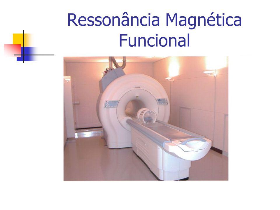 Ressonância Magnética Funcional