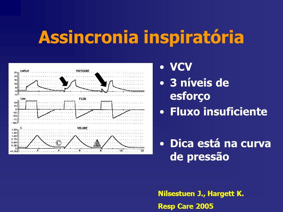 Assincronia inspiratória VCV 3 níveis de esforço Fluxo insuficiente Dica está na curva de pressão Nilsestuen J., Hargett K. Resp Care 2005