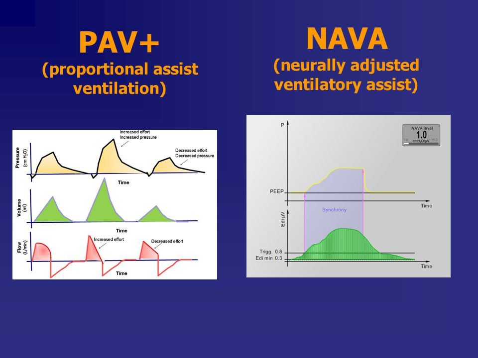 PAV+ (proportional assist ventilation) NAVA (neurally adjusted ventilatory assist)