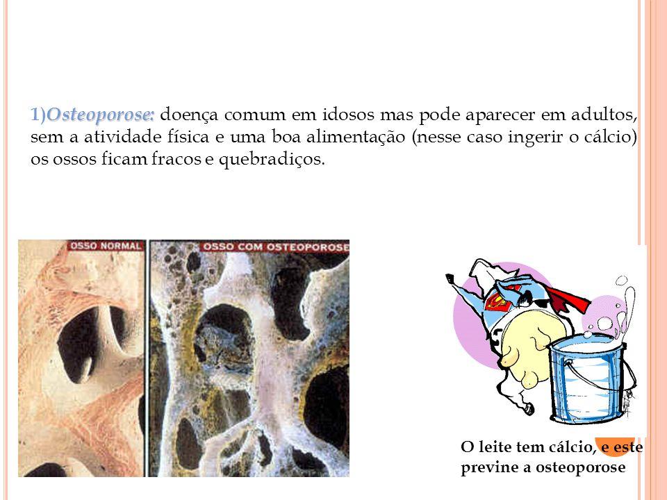 Osteoporose: 1) Osteoporose: doença comum em idosos mas pode aparecer em adultos, sem a atividade física e uma boa alimentação (nesse caso ingerir o cálcio) os ossos ficam fracos e quebradiços.