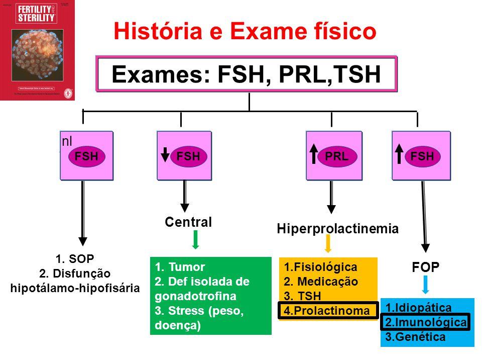 Exames: FSH, PRL,TSH FSHPRL FSH 1. SOP 2. Disfunção hipotálamo-hipofisária Central Hiperprolactinemia FOP História e Exame físico FSH nl 1. Tumor 2. D