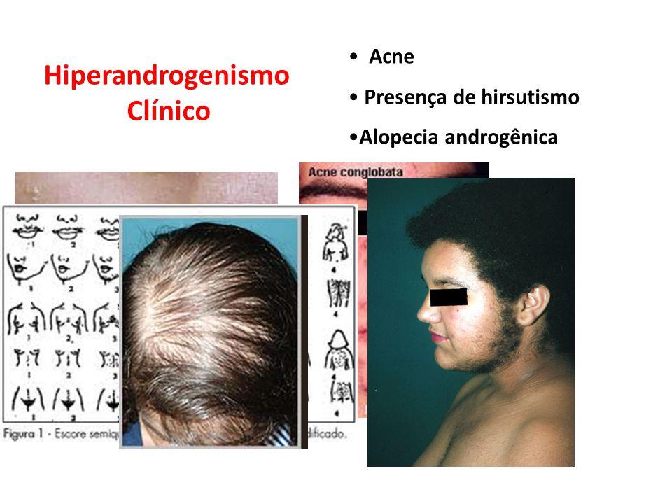 Hiperandrogenismo Clínico Acne Presença de hirsutismo Alopecia androgênica