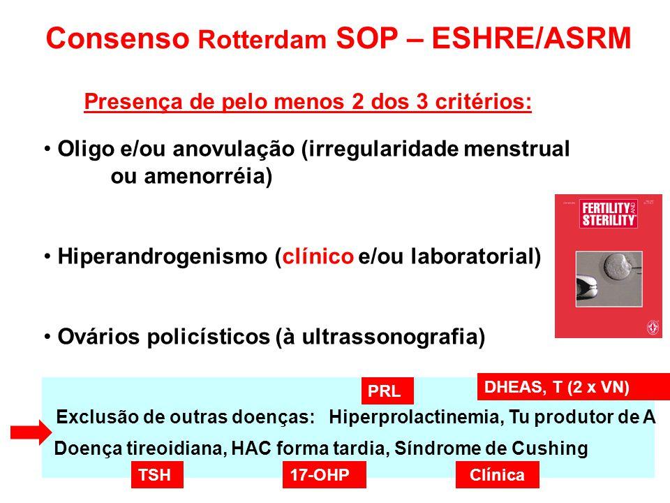 Exclusão de outras doenças: Hiperprolactinemia, Tu produtor de A Doença tireoidiana, HAC forma tardia, Síndrome de Cushing Consenso Rotterdam SOP – ES