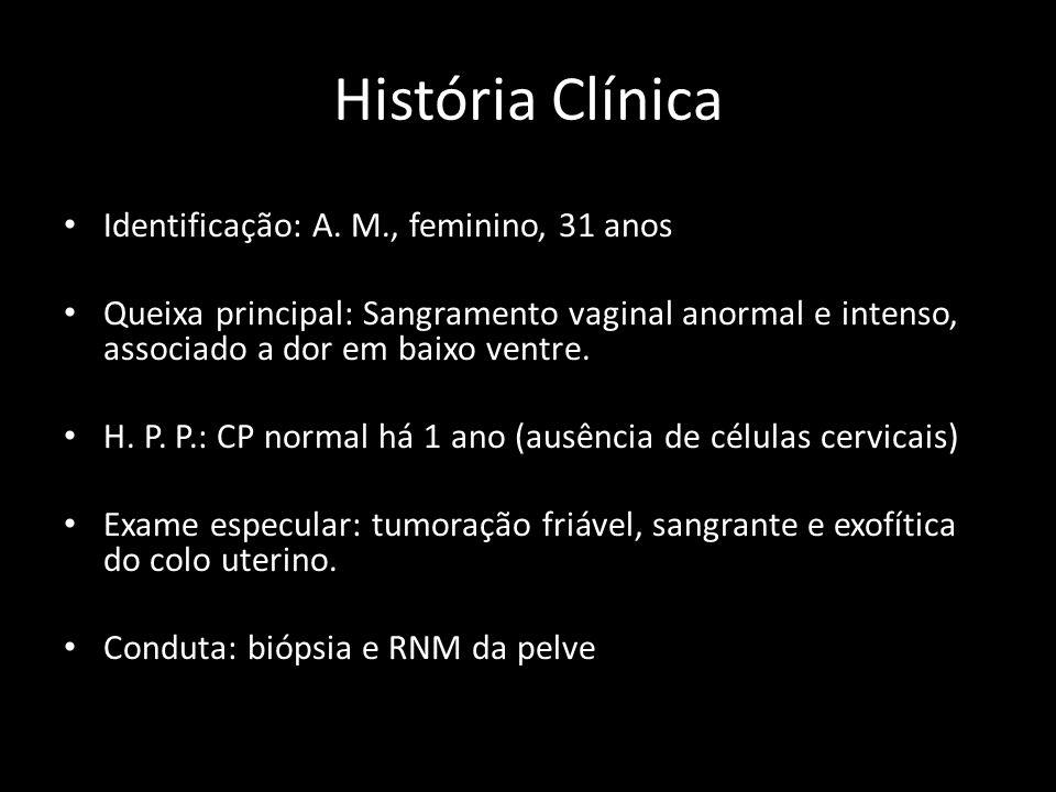 História Clínica Identificação: A. M., feminino, 31 anos Queixa principal: Sangramento vaginal anormal e intenso, associado a dor em baixo ventre. H.