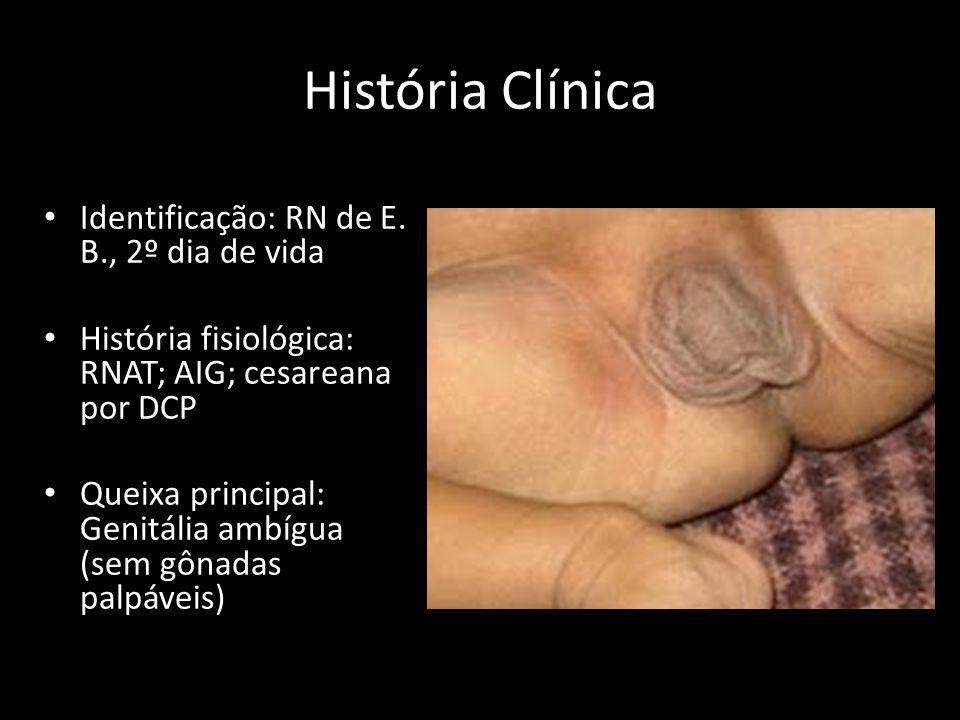 História Clínica Identificação: RN de E. B., 2º dia de vida História fisiológica: RNAT; AIG; cesareana por DCP Queixa principal: Genitália ambígua (se
