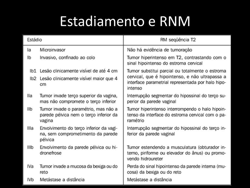 Estadiamento e RNM