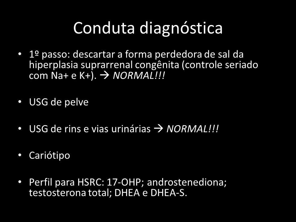 Conduta diagnóstica 1º passo: descartar a forma perdedora de sal da hiperplasia suprarrenal congênita (controle seriado com Na+ e K+).  NORMAL!!! USG