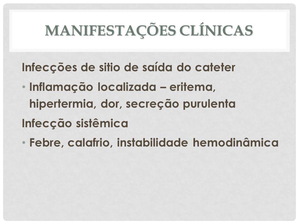 MANIFESTAÇÕES CLÍNICAS Infecções de sitio de saída do cateter Inflamação localizada – eritema, hipertermia, dor, secreção purulenta Infecção sistêmica