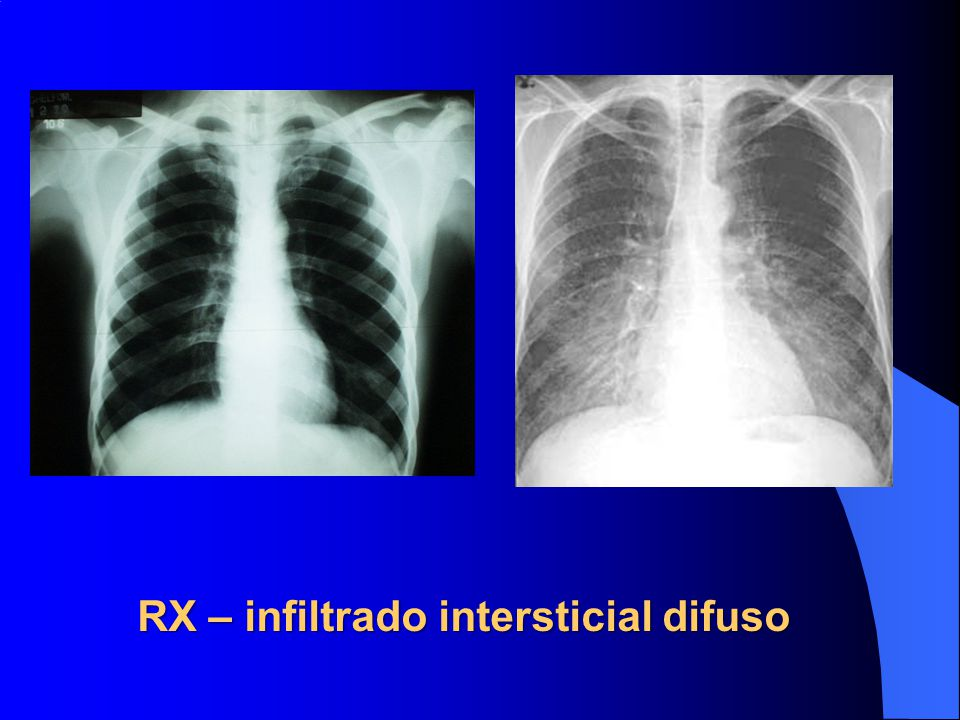 RX – infiltrado intersticial difuso