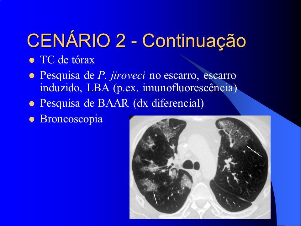 TC de tórax Pesquisa de P. jiroveci no escarro, escarro induzido, LBA (p.ex. imunofluorescência) Pesquisa de BAAR (dx diferencial) Broncoscopia CENÁRI