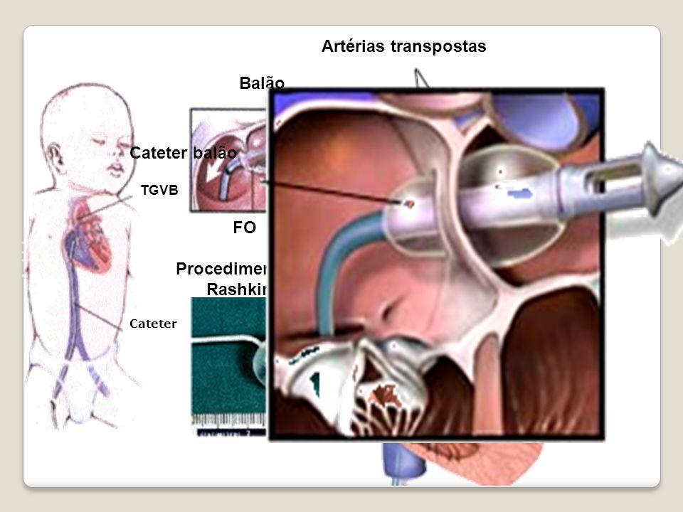 Artérias transpostas Cateter balão Fluxo Balão TGVB FO Procedimento de Rashkind Cateter Cateter balão