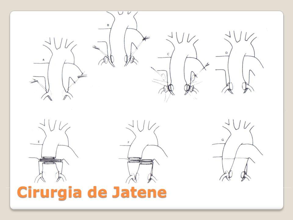 Cirurgia de Jatene