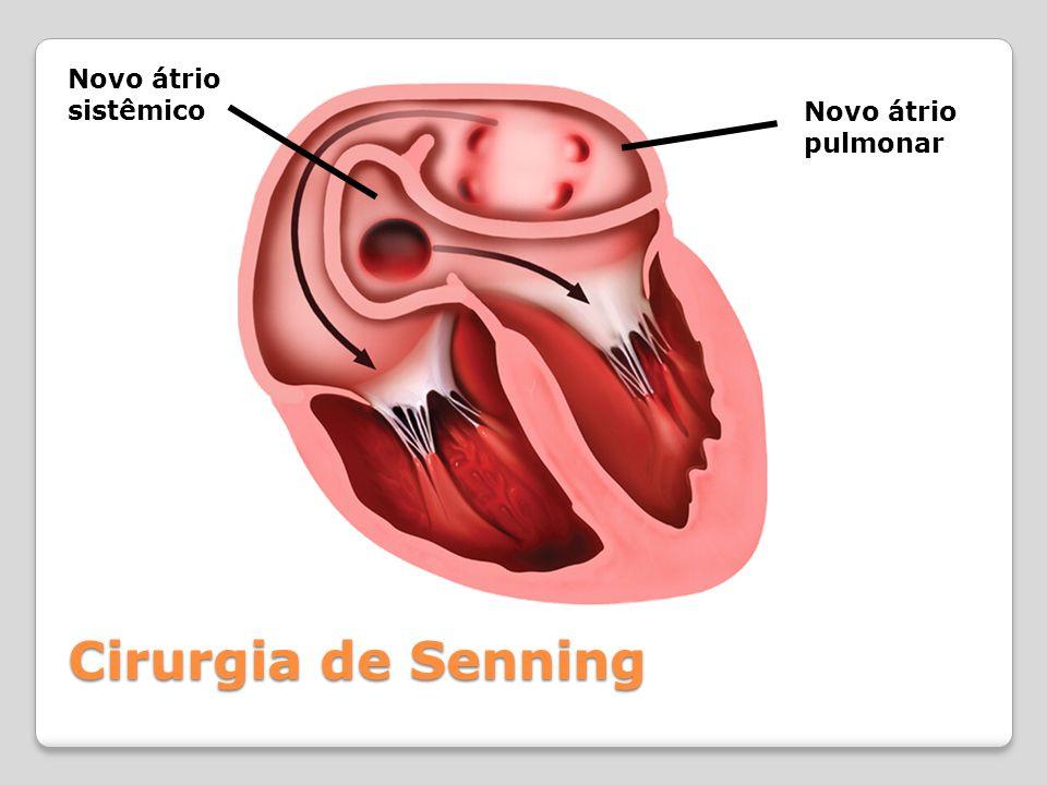 Cirurgia de Senning Novo átrio pulmonar Novo átrio sistêmico