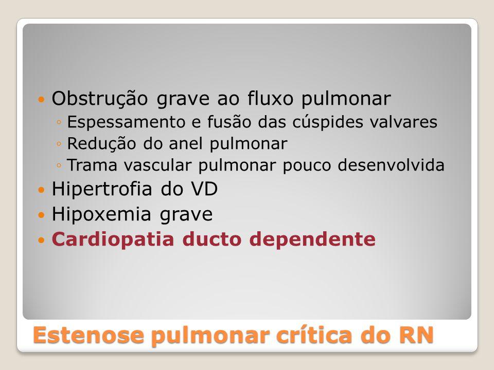 Obstrução grave ao fluxo pulmonar ◦Espessamento e fusão das cúspides valvares ◦Redução do anel pulmonar ◦Trama vascular pulmonar pouco desenvolvida Hi
