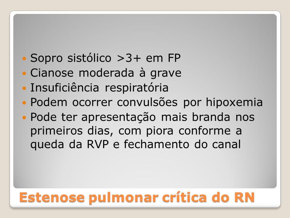 Estenose pulmonar crítica do RN Sopro sistólico >3+ em FP Cianose moderada à grave Insuficiência respiratória Podem ocorrer convulsões por hipoxemia P