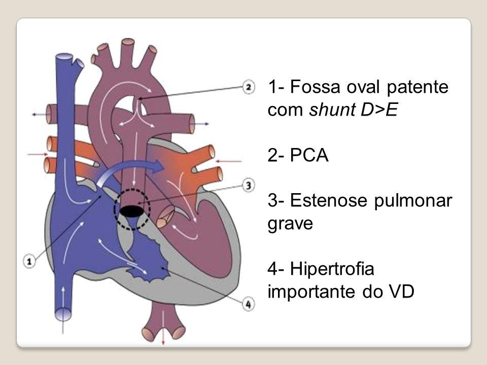 1- Fossa oval patente com shunt D>E 2- PCA 3- Estenose pulmonar grave 4- Hipertrofia importante do VD